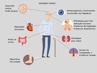 Prática de exercícios físicos retarda efeito de Parkinson