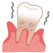 歯周病の歯茎のイラスト