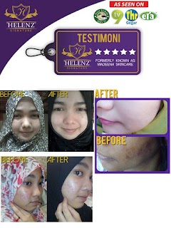 Madeena Skincare by Helenz Signature Terbukti Berkesan Menghilangkan Jerawat