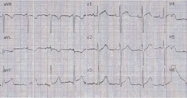 24 yo woman with chest pain: Is this STEMI? Pericarditis? Beware a negative Bedside ultrasound.