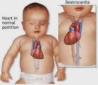 Cara Menyembuhkan Penyakit Jantung Bocor Pada Anak Dengan Cepat