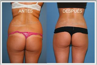 liposuccion_lipoescultura_abdominoplastia_cirujano_plastico