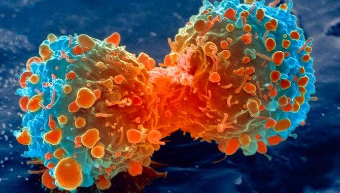 Breakthrough In Understanding How Cancer Cells Metastasize