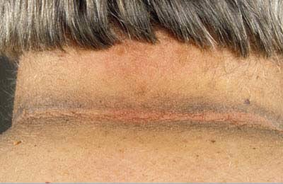 Acanthosis Nigricans Is A Skin Disorder Considered By Areas Of Dark Soft Mark In Body Creases And Folds The Impacted Can Turn Into Thickened May