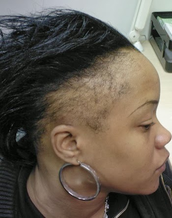 Does sew in weave damage hair indian remy hair does sew in weave damage hair 76 pmusecretfo Gallery