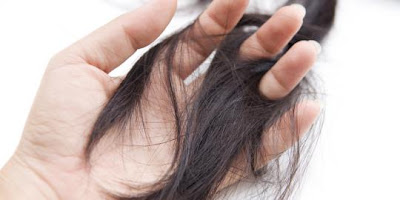 Tips and How To Prevent Hair Loss The Natural Way