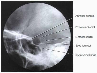 Sella Turcica : Lateral Projection - RadTechOnDuty