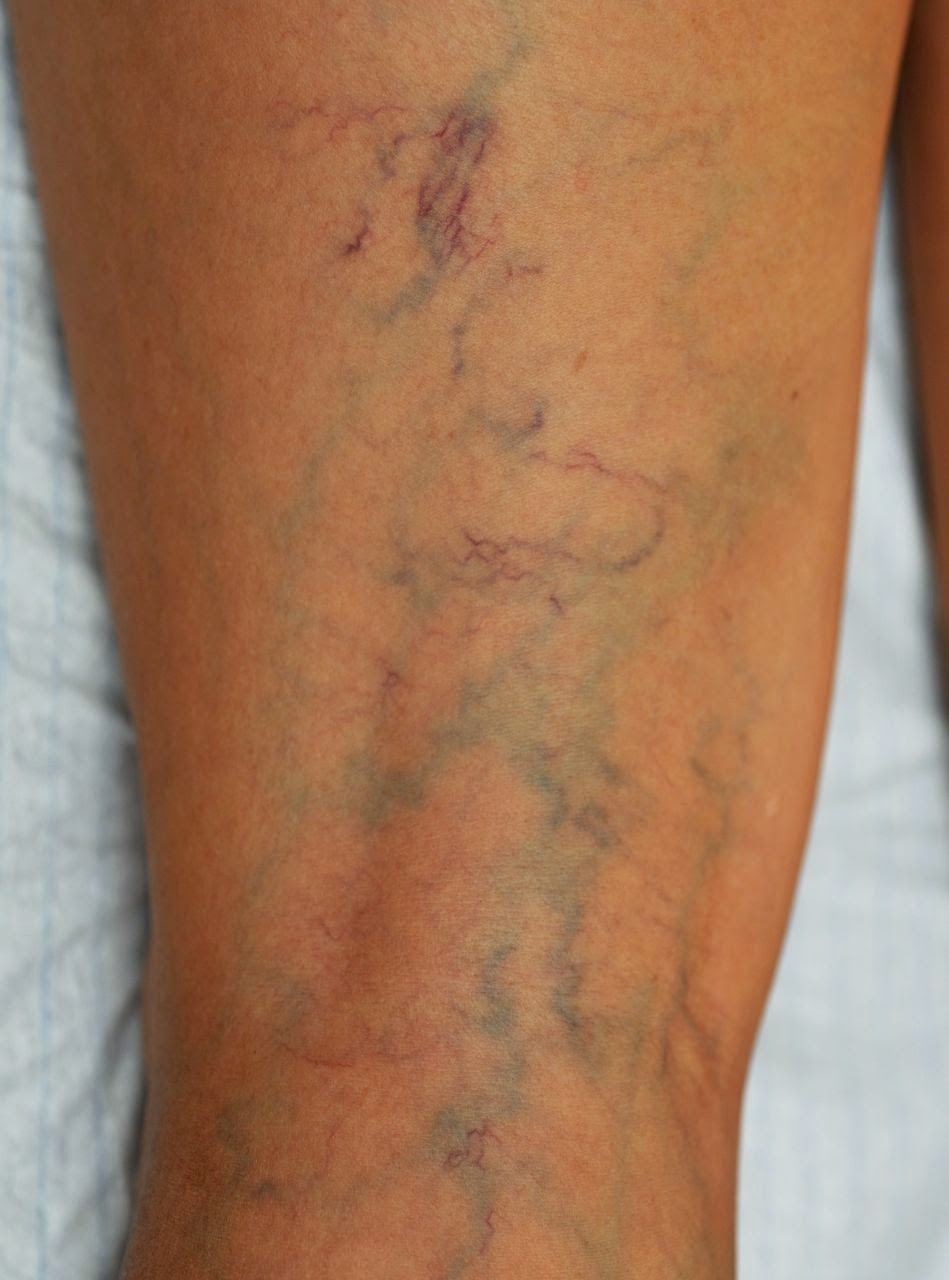 Si es posible sanar la trombosis del pie