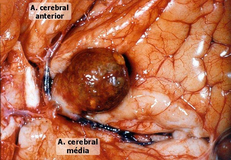 Projeto hipertens o em idosos aneurisma cerebral for Comedores pequea os para 4 personas