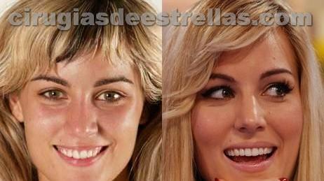 Edurne antes y después
