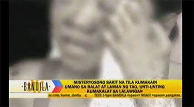 Flesh-eating illness' spreading in Pangasinan