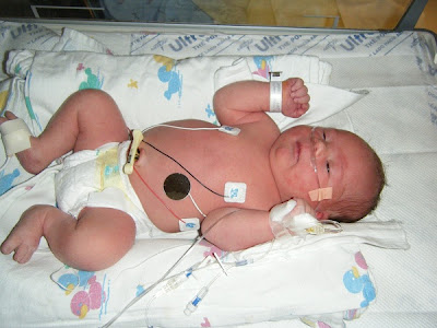 Spencer in NICU - 12 hours