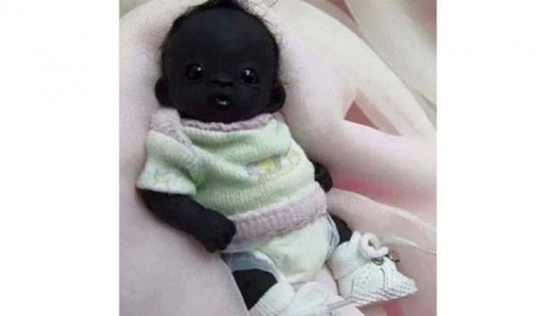 Bayi Berkulit hitam