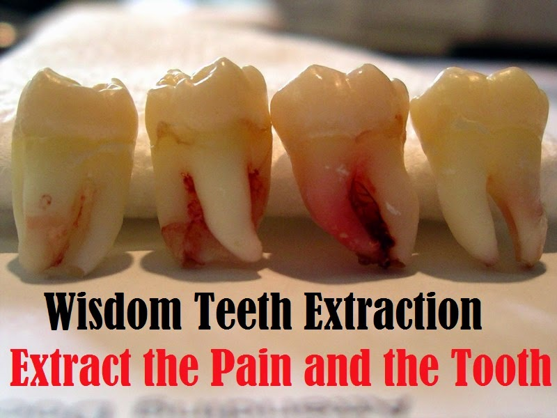 is what tooth wisdom tooth number