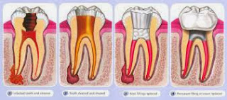 http://www.dentistinchennai.com/root-canal-treatment.php