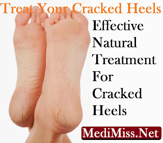 Treat Your Cracked Heels - Effective Natural Treatment For Cracked Heels