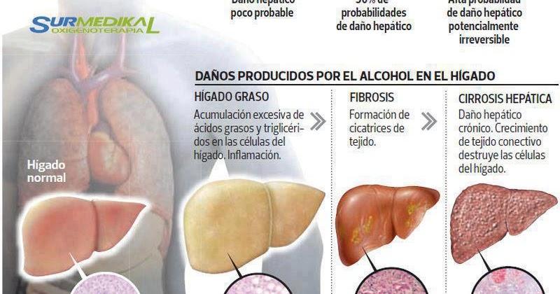 Los plazos máximos de la codificación del alcohol