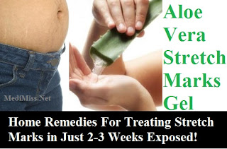 Home Remedies For Treating Stretch Marks