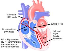 sick sinus syndrome definition