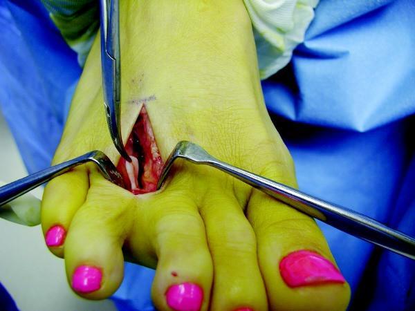 Foot injuries neuroma
