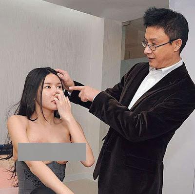 Charmian Chen Proses Implan-6