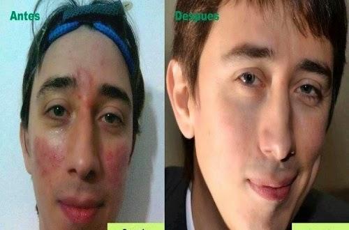 Bộ Mỹ phẩm Herbalife Skin hiệu quả sau 7 ngày sừ dụng
