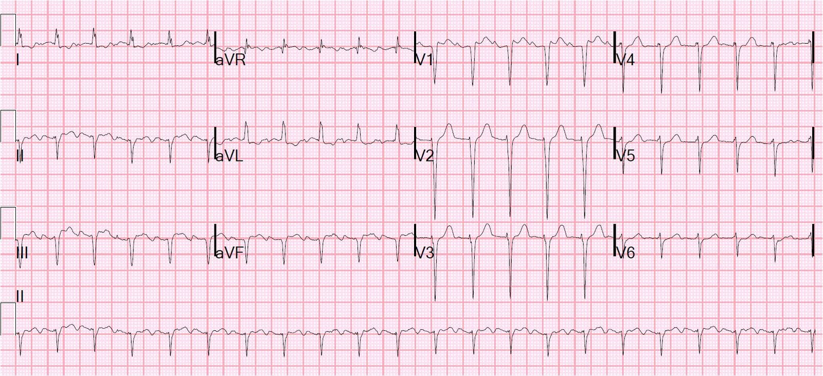 Dr Smith's Ecg Blog Tachycardia With Pericardial Effusion. Alabama Professional Engineer. Chestnut Credit Counseling Floor Cleaner Msds. Ebay Global Shipping Program. Acs Cancer Facts And Figures 2013. I Own My Home And Need A Loan. Internet And Cable Provider Greg Barton Cpa. Business Degree Options Mark Zuckerberg House. Wage Garnishment Worksheet Nose Job New York