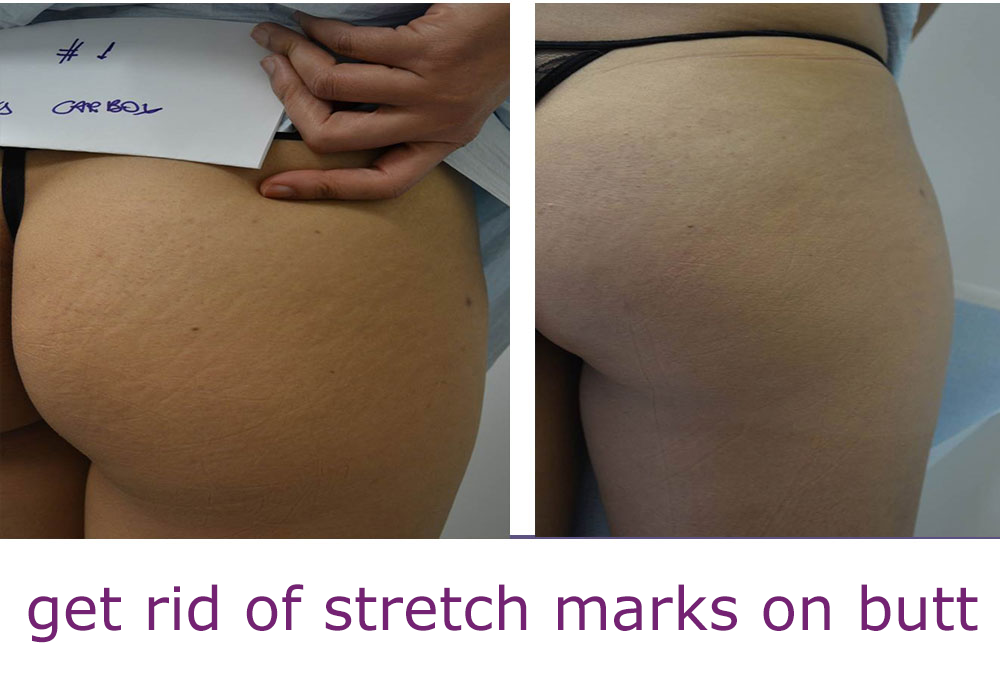 Teen stretch marks etiology physical exam