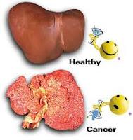 obat herbal penyakit radang hati