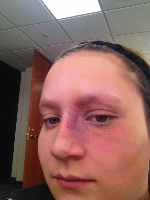 how to get rid of a bruise on my face