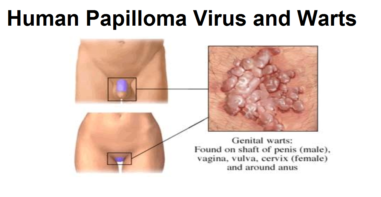 Natural health sherpa free, genital warts just one, home remedy for