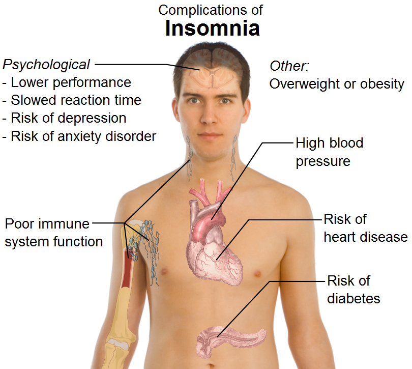Medical Treatment For Insomnia