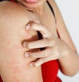 cara mengatasi penyakit kulit