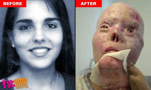 11 Gambar Sadis Rupa Gadis Terkini Selepas Dilanggar Pemandu Mabuk