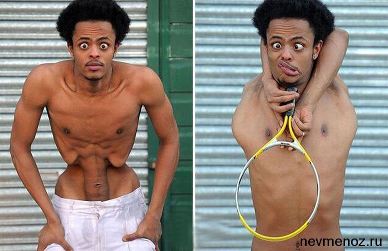 фото голые люди уроды