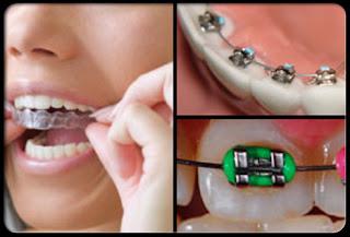 طب الاسنان التجميلي 7.jpg