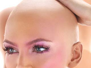 hairloss female women