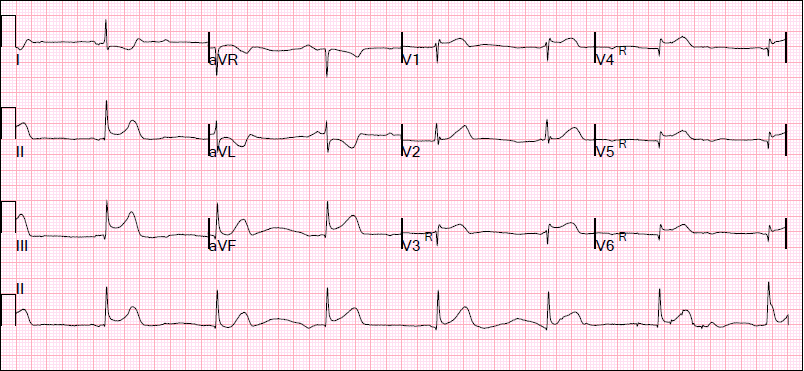 right ventricular and left ventricular cardiogenic shock Right ventricular infarction was first  either in association with left ventricular infarction or as an  of cardiogenic shock due to right.
