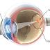 Teknologi Chip Retina Untuk Tunanetra