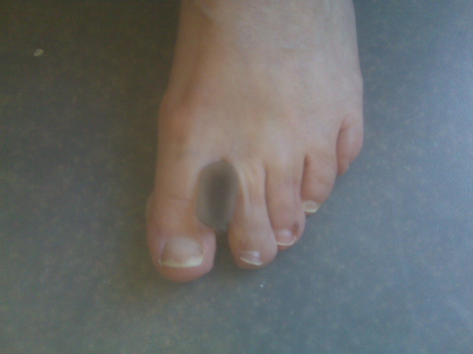Foot and Ankle Problems By Dr. Richard Blake: Big Toe Length ...