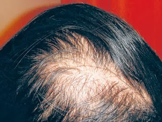 masalah keguguran rambut, masalah rambut gugur, rawatan rambut gugur