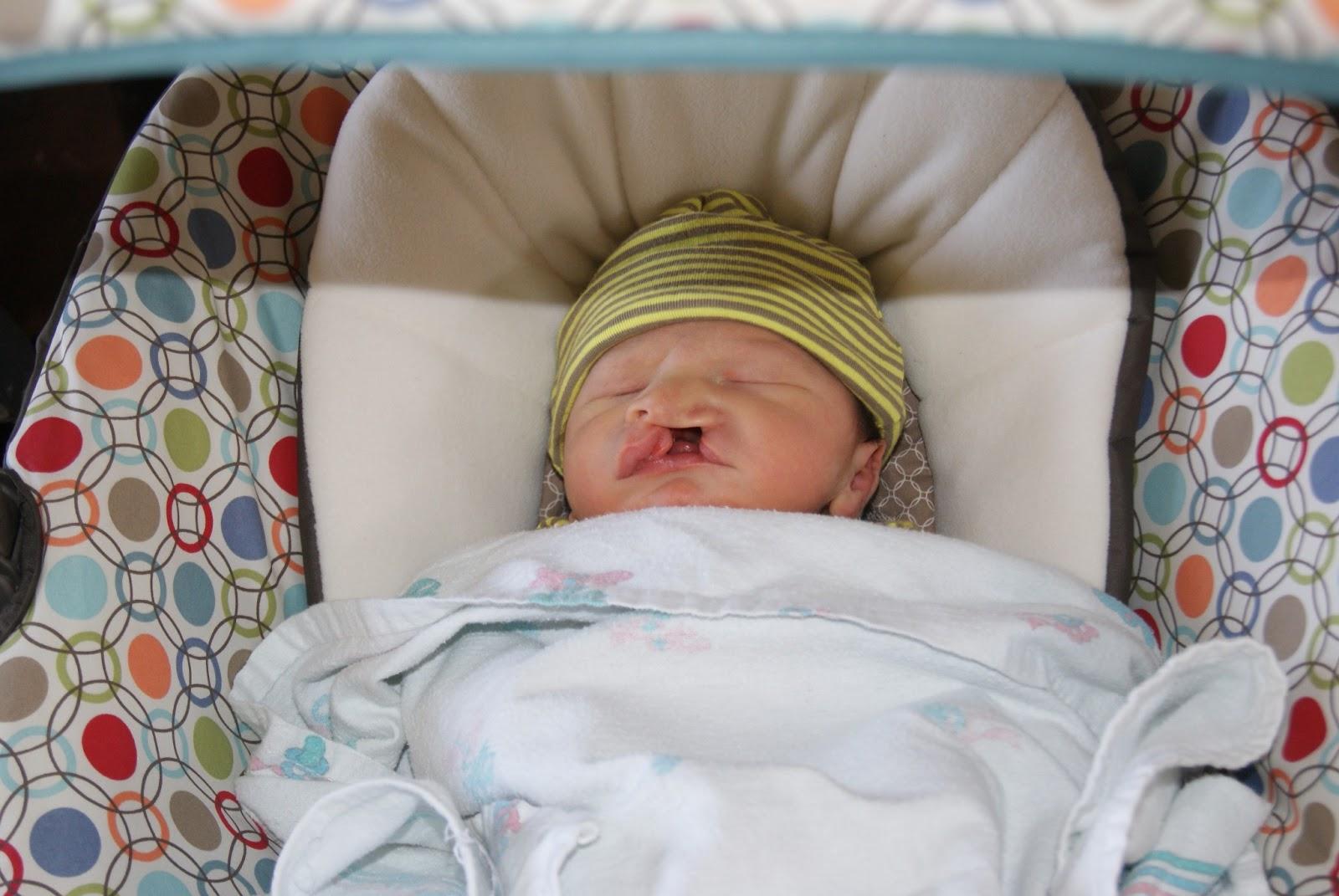 Baby With Recessed Chin | life love lip balm micrognathia