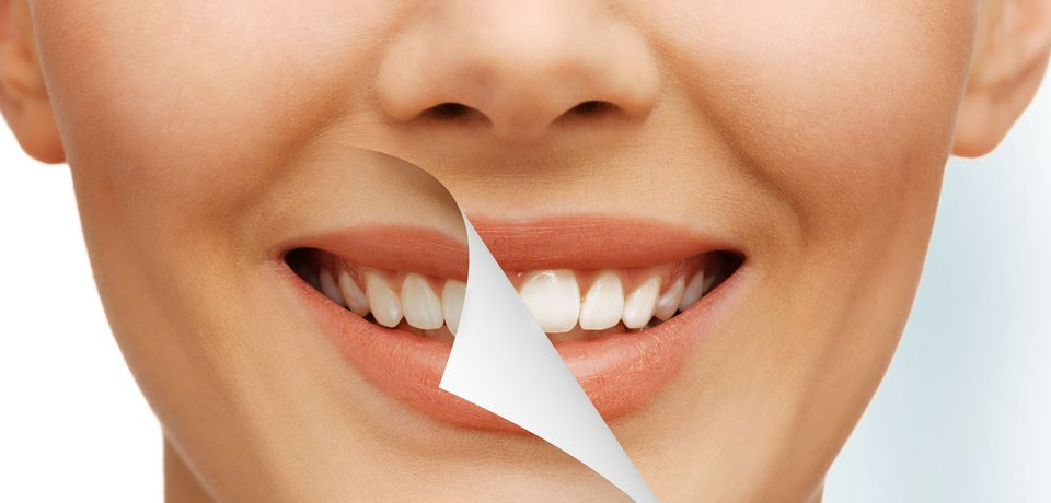 O Que Pode E O Que Nao Pode No Clareamento Dental Blog Papo De