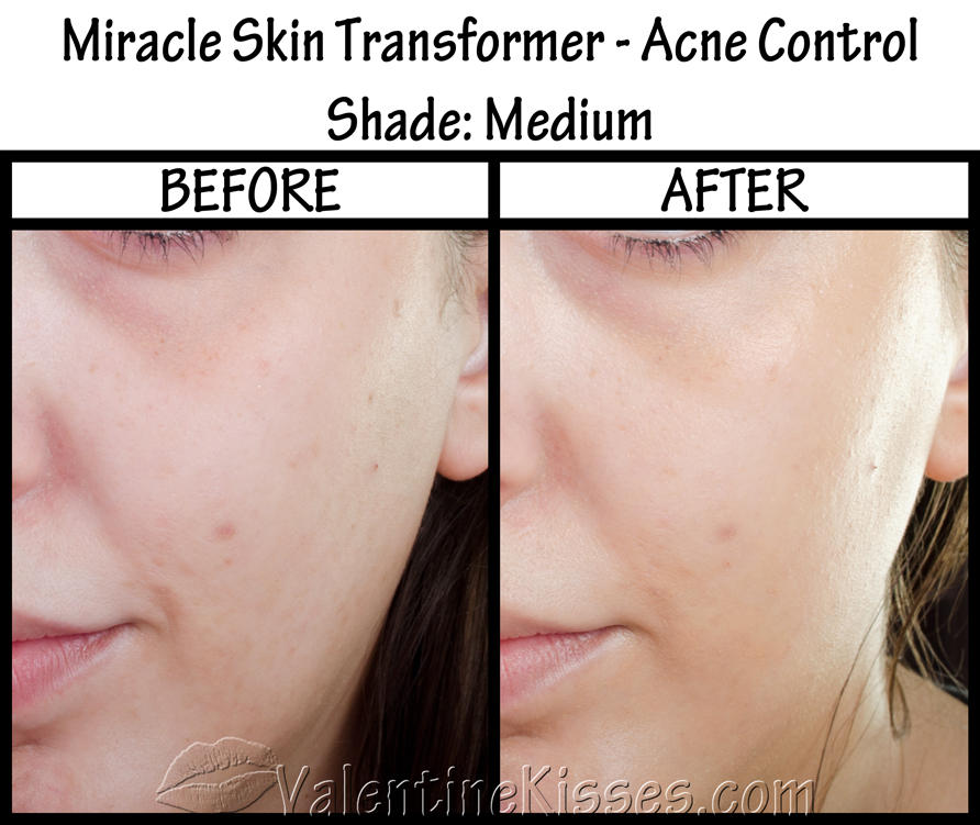 Miracle skin transformer medium
