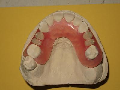Valplast, partial denture, flexible denture