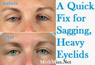 A Quick Fix for Sagging, Heavy Eyelids