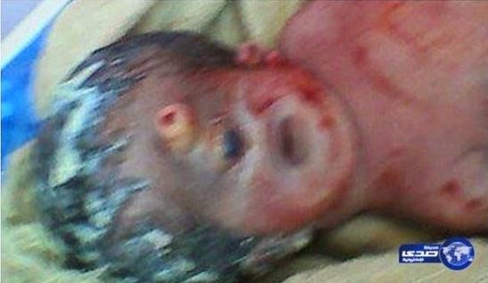 Bayi Bermata Satu Telah Lahir Di Mesir
