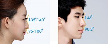 best korean rhinoplasty wonjin