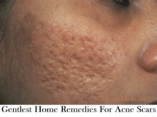 Gentlest Home Remedies For Acne Scars