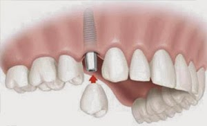 Know more about tooth replacement